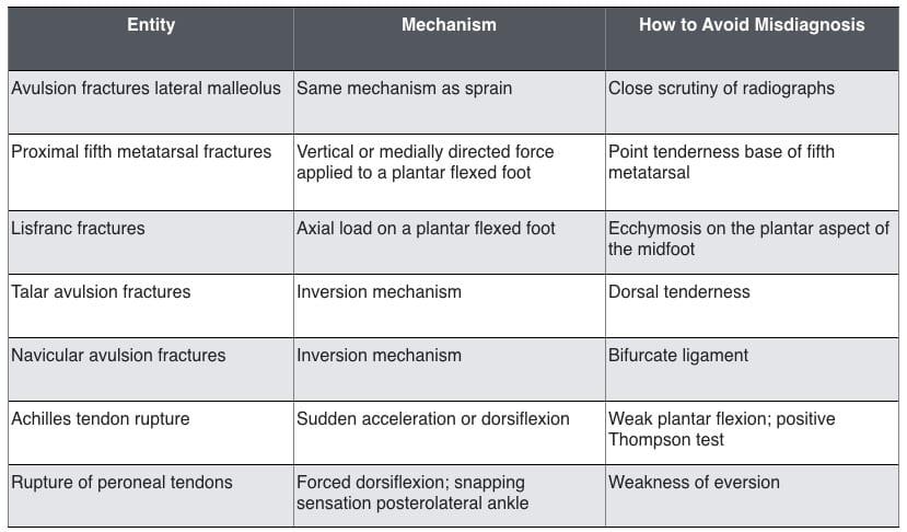Ankle-Sprain-misdiagnosis