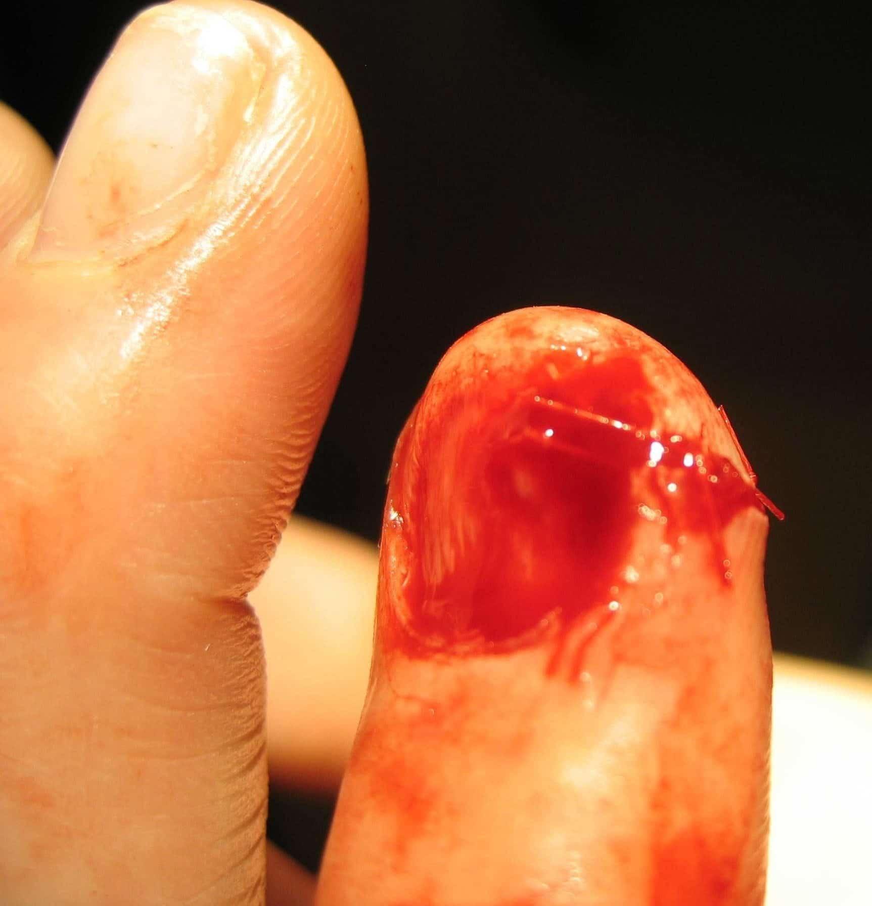 Fingertip Injury Litfl Bamboozler