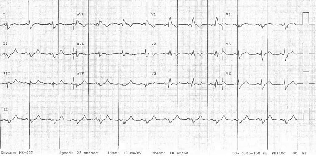OMI ECG Proximal LAD RBBB