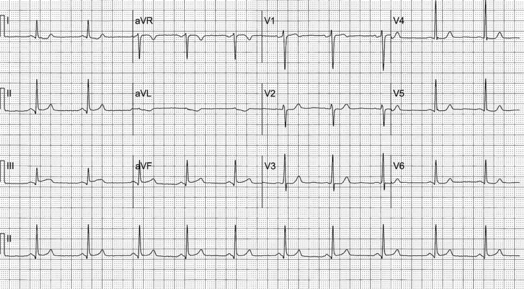 OMI ECG ST-segment changes. some subtle, some obvious