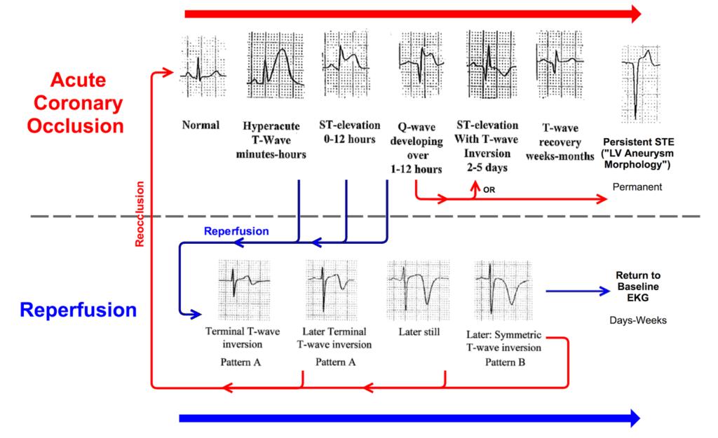 The ACS spectrum using the OMI vs. NOMI paradigm