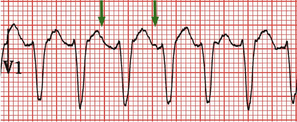 AV dissociation visible in V1