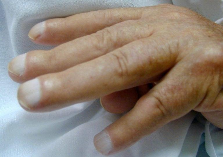 CXR CASE 027 Hand