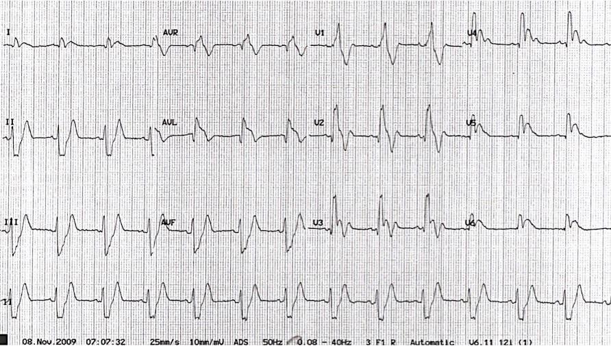 ECG Electrocardiographic Exigency 001