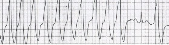 ECG Strip Capture beats