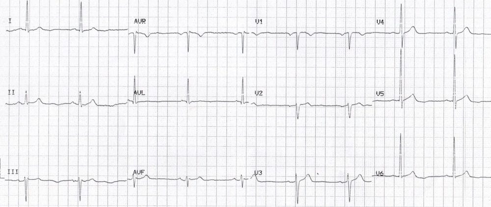 ECG lateral U wave inversion Something Sinister
