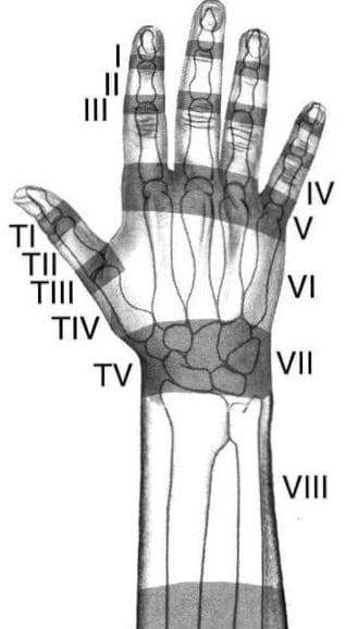 Hand Extensor Zones