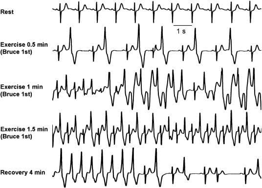 CPVT Catecholaminergic Polymorphic Ventricular Tachycardia
