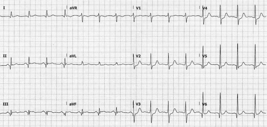 ECG Posterior OMI 01