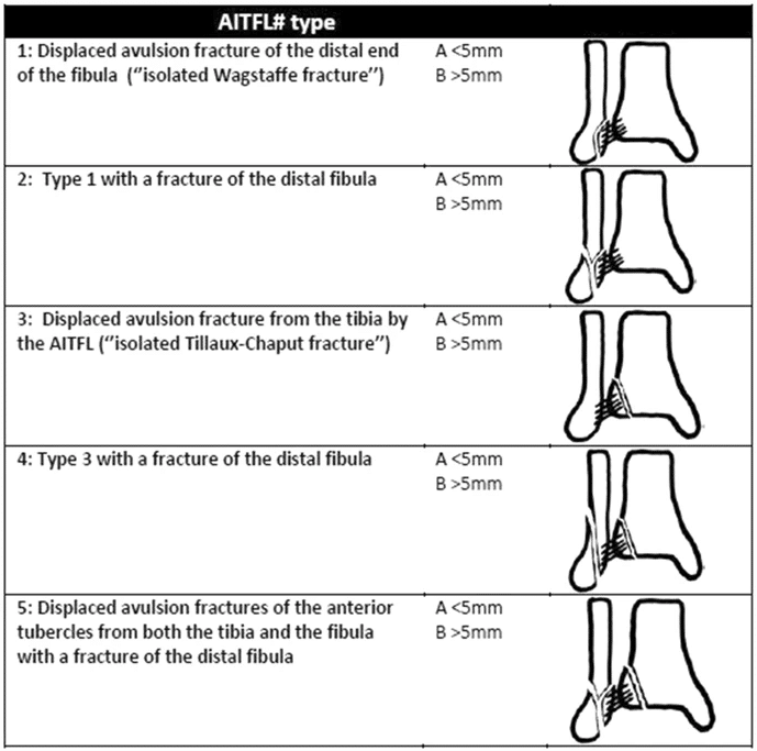 Birnie classification AITFL