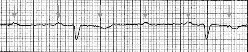 3-1-heart-block