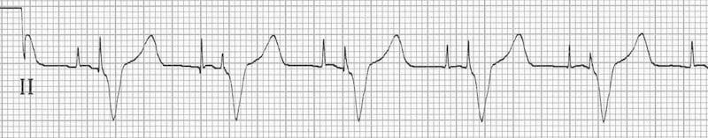Pacemaker ecg strips ⭐ EkG STRIP