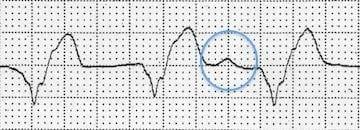 AIVR-ayrışmış-P dalgası