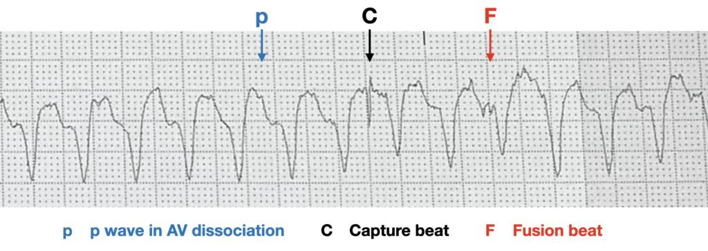 AV dissociation Fusion beat capture beat VT