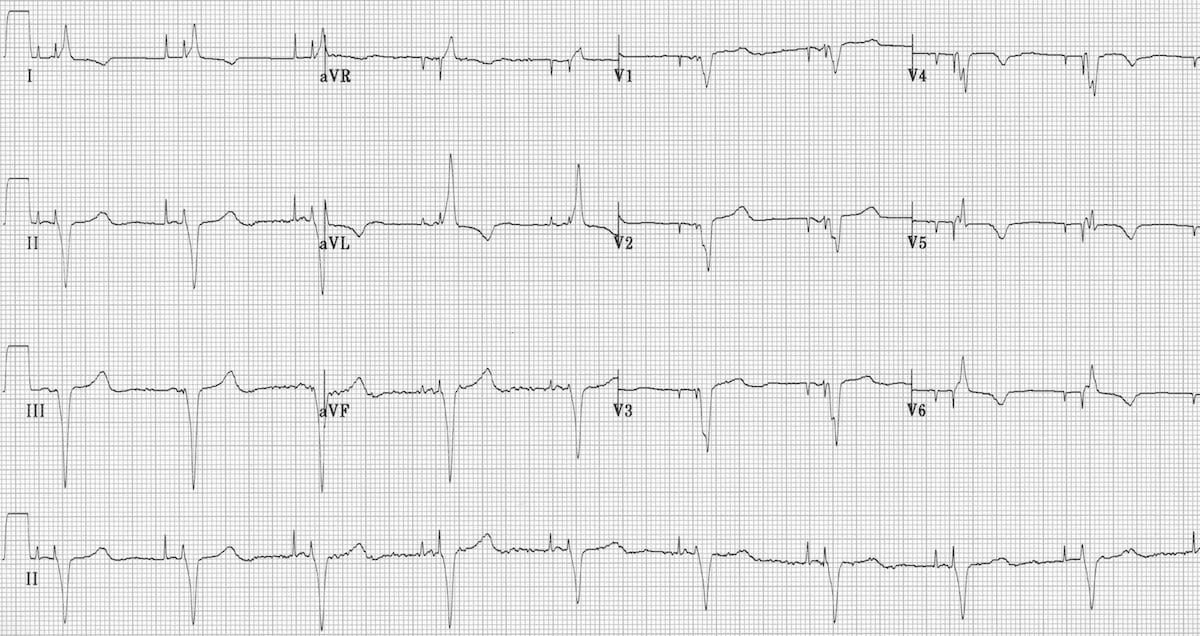 Pacemaker Rhythms – Normal Patterns • LITFL • ECG Library
