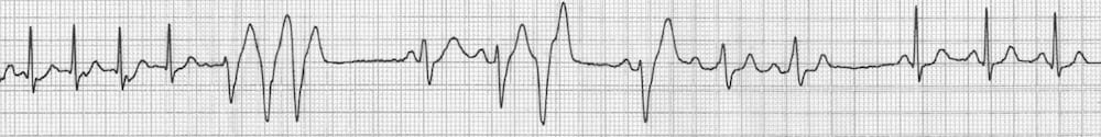AVNRT reverts to sinus rhythm Adenosine