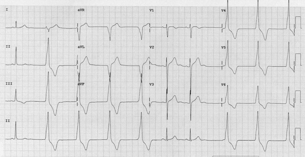 Accelerated Idioventricular Rhythm (AIVR) ECG 1