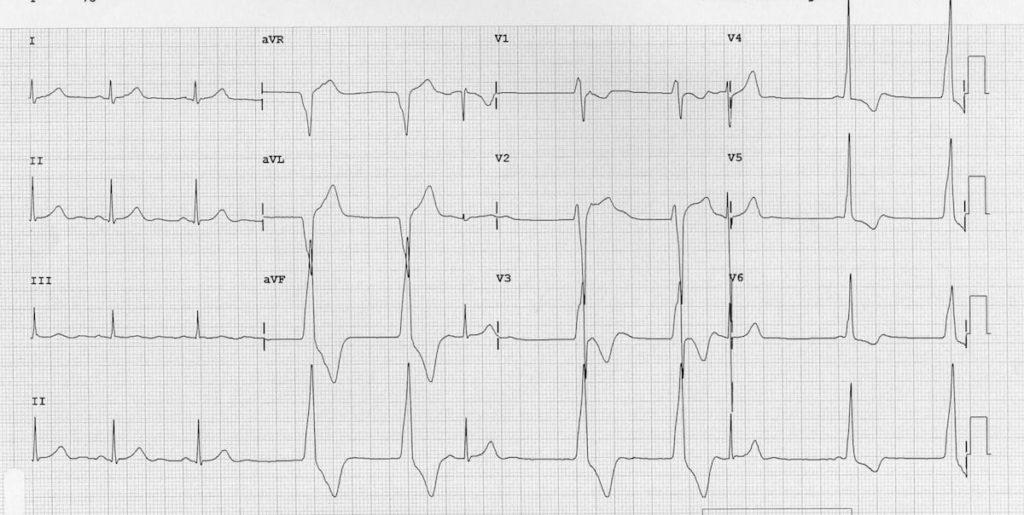 Accelerated Idioventricular Rhythm (AIVR) ECG 2