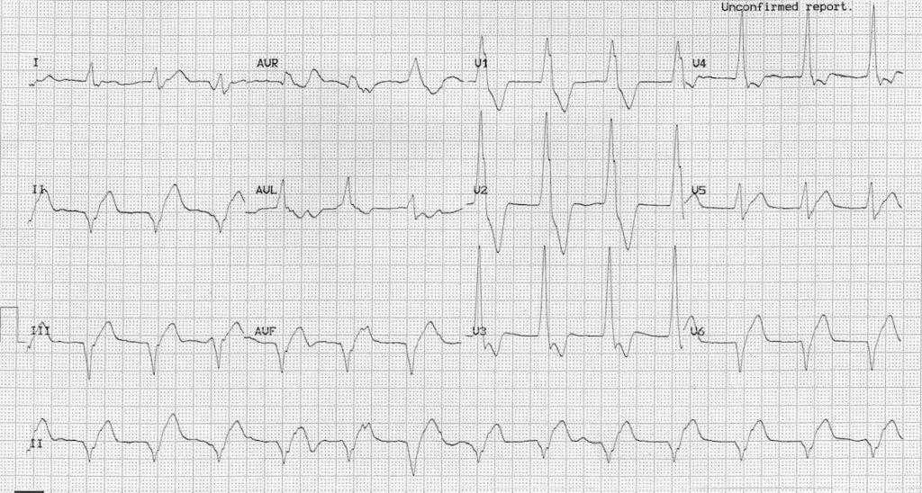 Accelerated Idioventricular Rhythm (AIVR) ECG 3