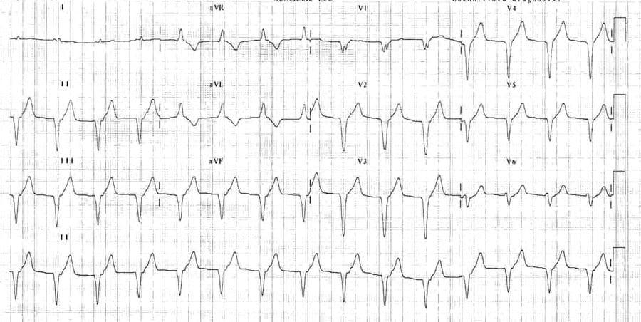 Accelerated Idioventricular Rhythm (AIVR) ECG 5