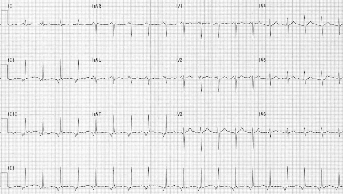 Accelerated Junctional Rhythm (AJR) ECG 3