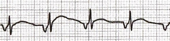 Accelerated-Junctional-Rhythm-AJR-ECG-Library-2