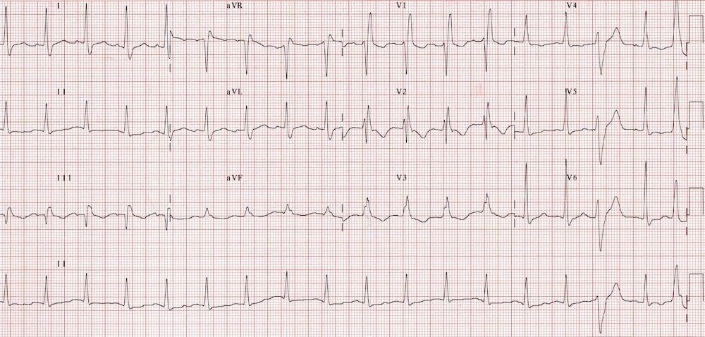 Acute massive PE with s! Q3 T3 RBBB TWI V1-3