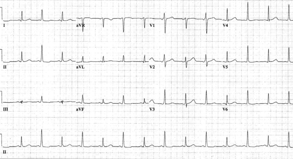Alternating QRS amplitude and axis