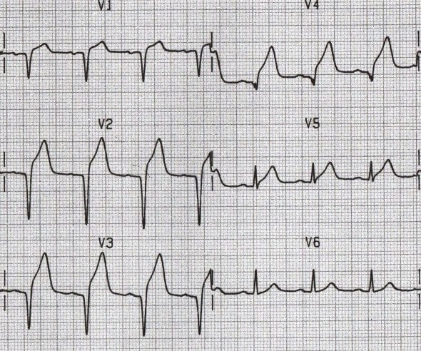 Anterior Q waves STEMI