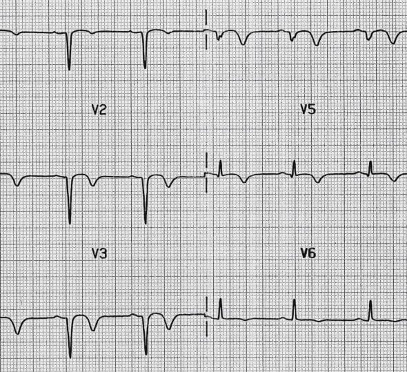 Anterior Q waves post recent MI