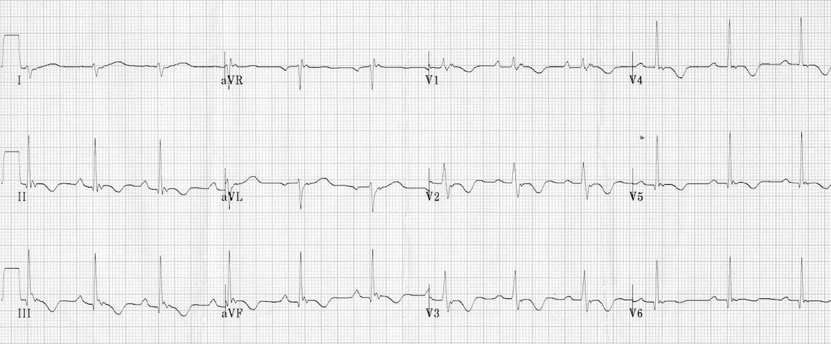 Arrhythmogenic Right Ventricular Cardiomyopathy (ARVC) ECG ARVD