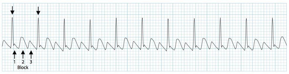 Atrial flutter with a 3-1 block