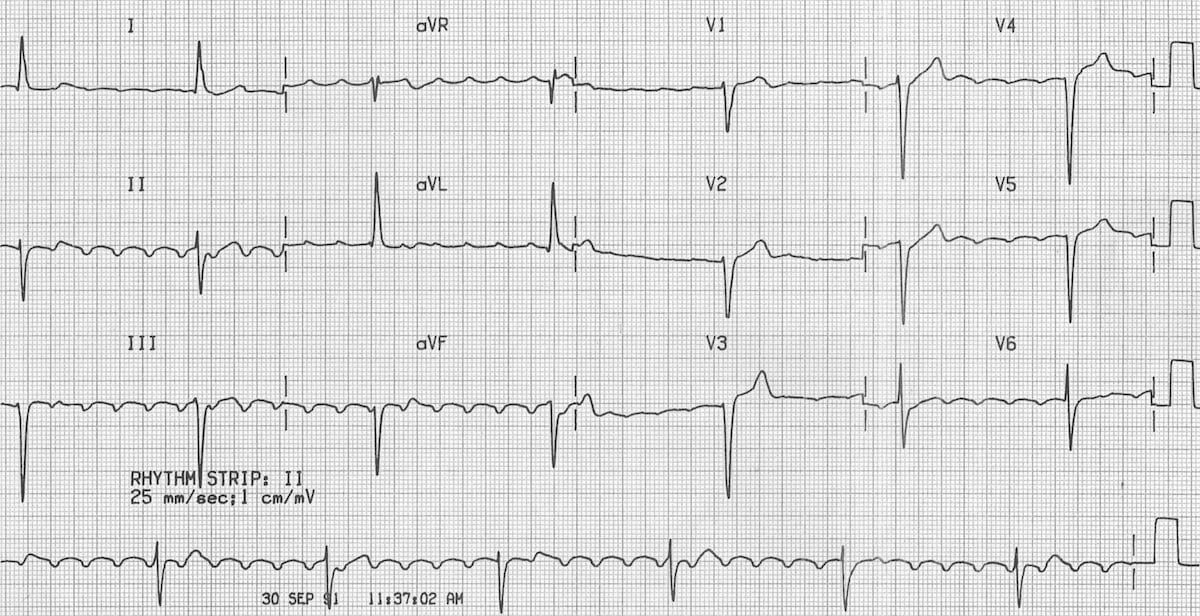 Atrial flutter with block digoxin toxicity