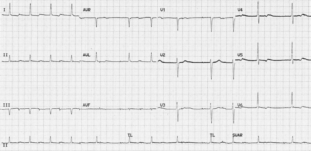 Atrial paced rhythm with Wenckebach conduction