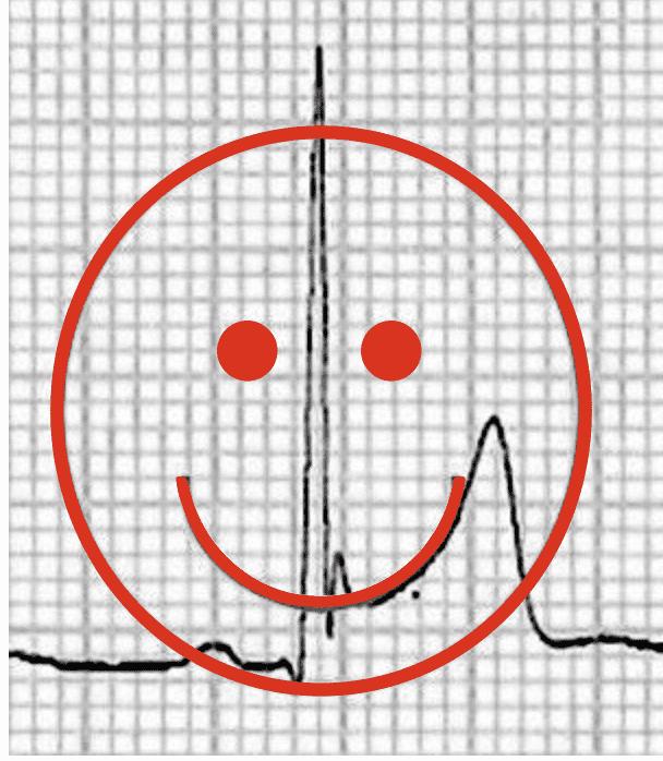 BER ST-elevation Smiley-face