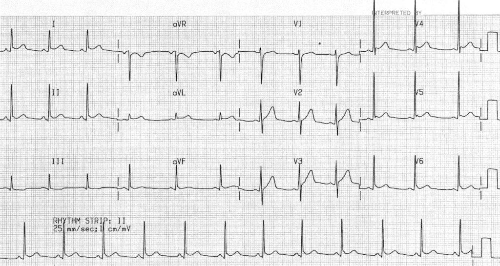 BER-on-baseline-ECG