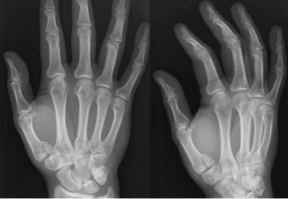 Bennett Fracture thumb XR