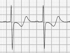 Biphasic T waves due to hypokalaemia