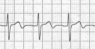Biphasic T waves due to ischaemia