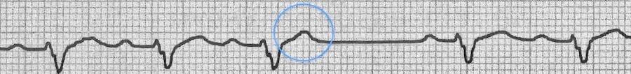 Blocked Premature Atrial Complex (PAC) 1