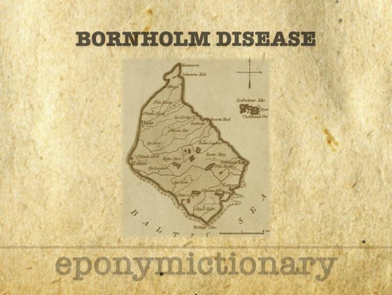 Bornholm disease pleurodynia 340