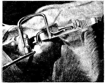 Boyle-Davis mouth gag 1922