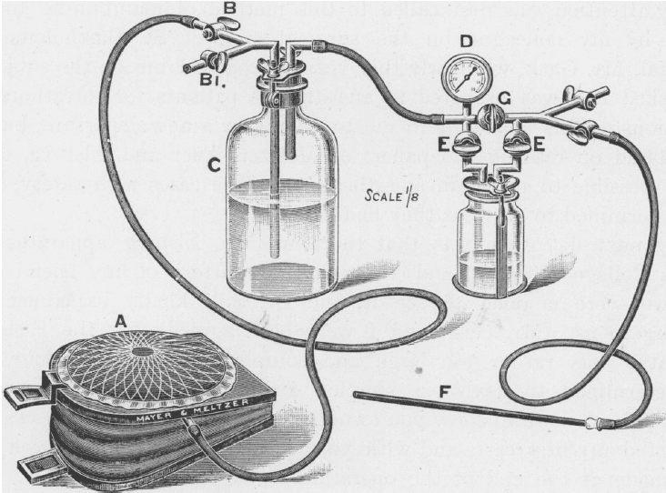 Boyle Intratracheal Insufflation of Ether 1912