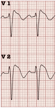 Brugada Sign V1 V2 ECG Coved St segments