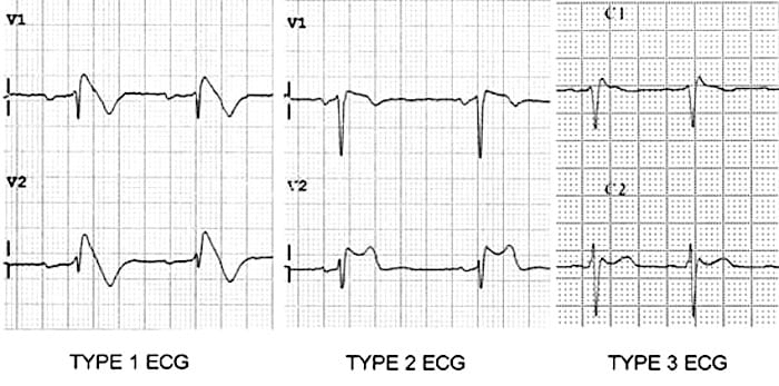 Brugada syndrome type 1 2 3