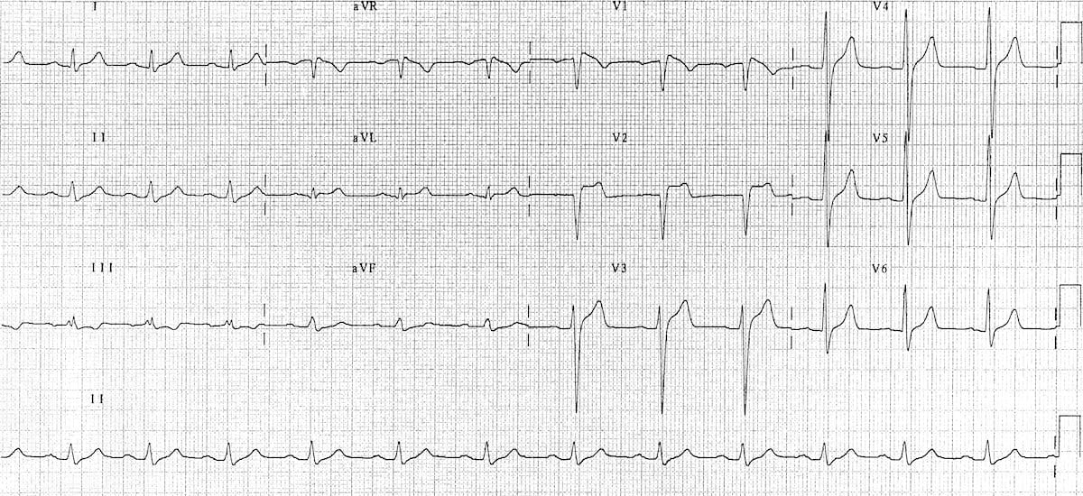 Brugada syndrome type 3