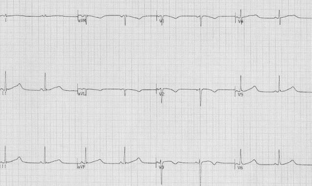 Congenital Long QT Syndrome ECG LQTS 2