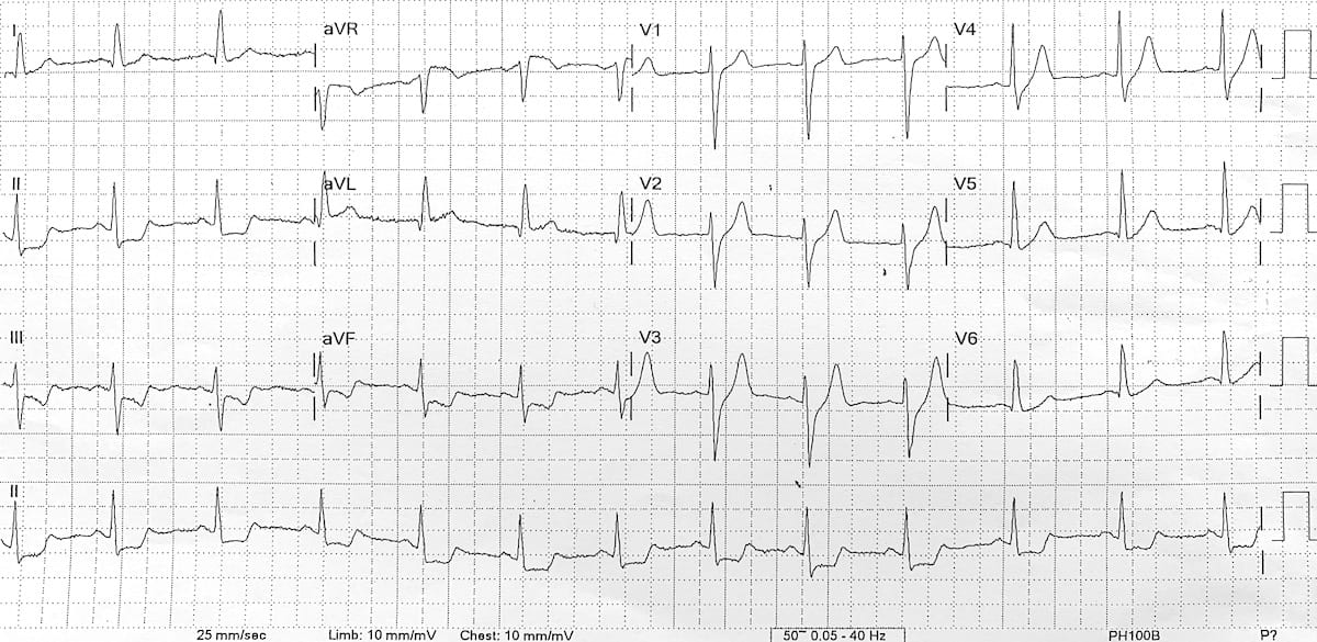 De Winter T waves ECG pre-arrest