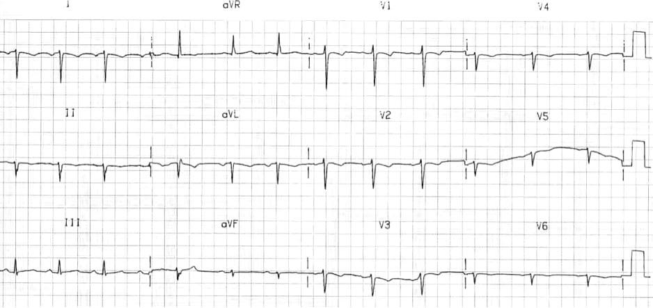 Dextrocardia ECG