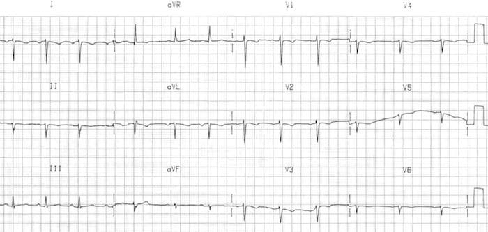 Dextrocardia R wave